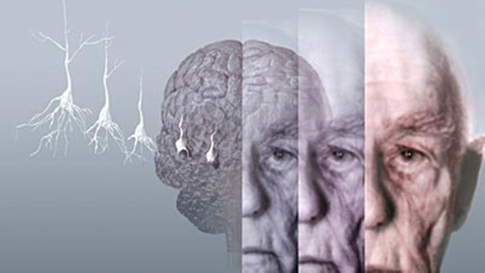 Photo of دراسة: الحرمان ليلة وادة من النوم قد يزيد فرص الاصابة بـ «الزهايمر»