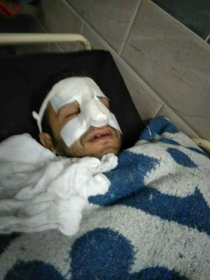 Photo of تفاصيل الاعتداء على 3 أطباء بمستشفى أسيوط الجامعى