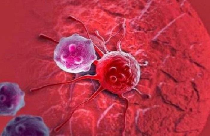 Photo of دراسة: تقنية ذكاء اصطناعى تكتشف سرطان الثدى بدقة أكثر من الأطباء