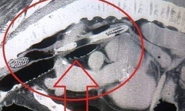 Photo of إزالة فرشاة أسنان ابتلعها صينى وعلقت بأحشائه لمدة 20 عاما