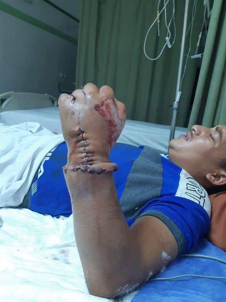 Photo of مستشفى جامعة أسيوط تنجح في زرع يد شاب بعد بترها بالكامل فى حادث سيارة