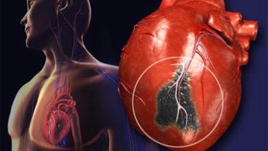 صورة الصحة العالمية تحذر من خطورة التدخين على القلب